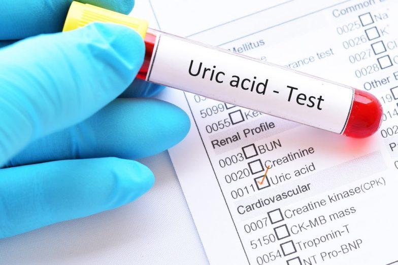Acid Uric Là Gì
